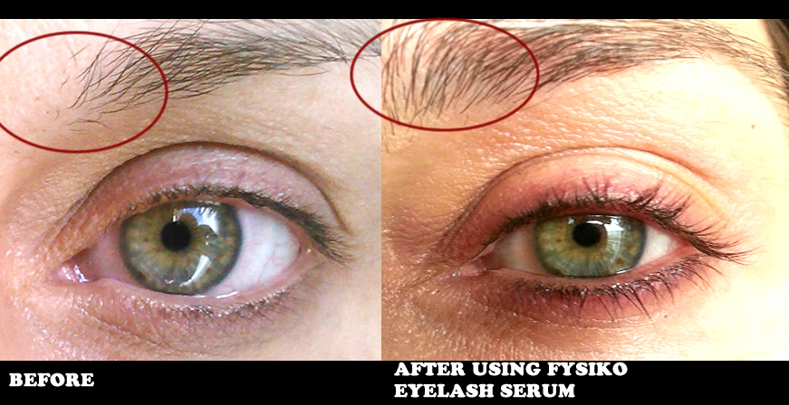 Castor Oil Eyebrows - Beautiful Eyelashes and Eyebrows